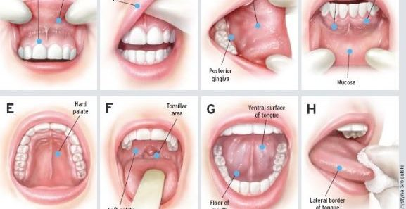 Hepatitis C linked to increased Oral Cancer cases