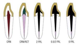 types of ferrules