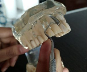 types-of-finger-rests-in-dentistry-and-periodontics