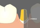 what is ferrule effect and types of ferrules in dentistry