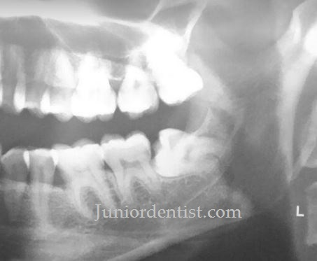 Care or Tips after Impacted Wisdom tooth extraction