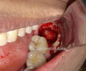 Impacted Wisdom tooth removal tips to control pain and bleeding