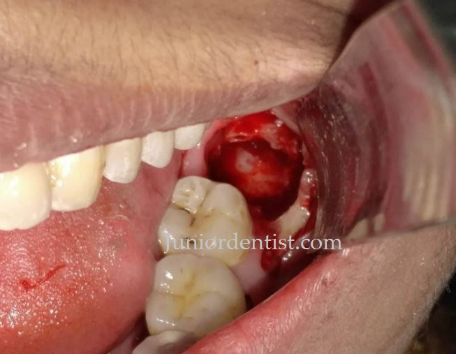 Care To Be Taken Immediately After Wisdom Tooth Extraction