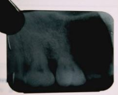 Dental Radiographic faults and artifacts