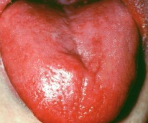 Glossitis due to Vitamin B2 and Folic acid deficiency