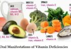 Oral manifestations of Vitamin deficiencies
