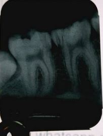 Radiographic faults in Dentistry