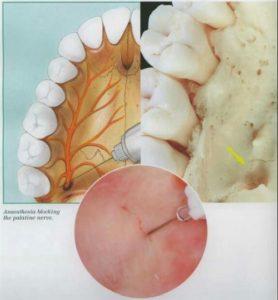 Anterior Palatine Nerve Block