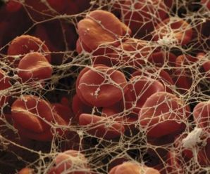 Role of Vitamin K Liver and vascular wall in Hemostasis