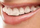 How to prevent Discoloration of Ceramic Braces