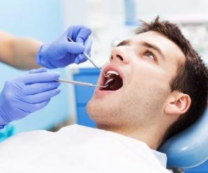 How are Dental points calculated for SSB medical health examination