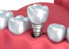What to do if Crown on Dental Implant becomes Loose