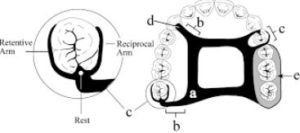 Circumferential Clasp