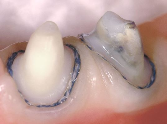 Gingival Retraction Methods and materials used
