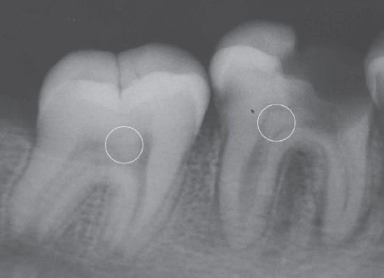 Pulp Stones radiographic appearance