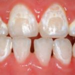 yellow or white stains on teeth after braces