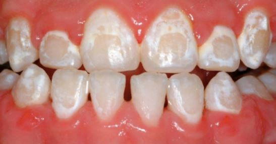 Will My Teeth Get Yellow Or White Stains After Orthodontic