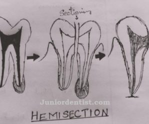 Hemisection and Radisection