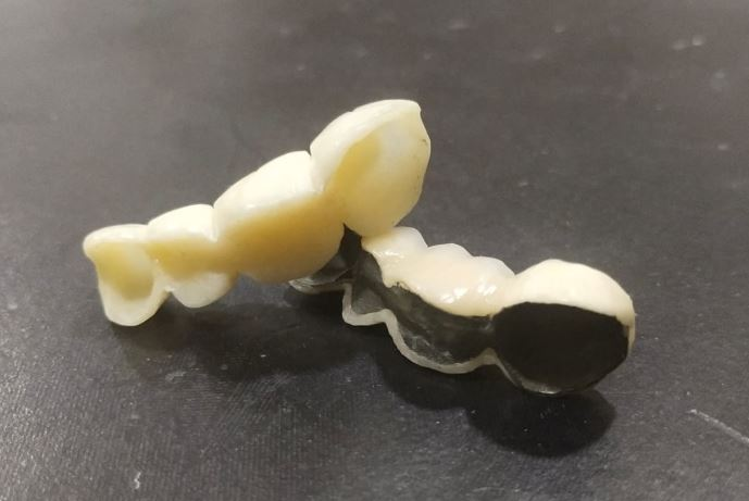 Zirconia Crowns indications, advantages, cost