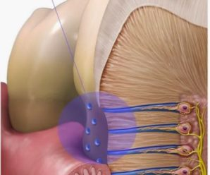 Use of Lasers to treat Dentinal hypersensitivity