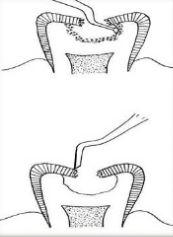 ART technique cavity preparation