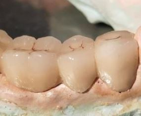 Classification of Fixed Partial Dentures