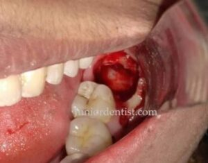 how many days does it take for extraction socket to heal wisdom tooth extraction
