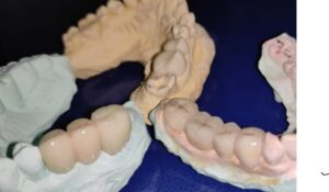 Classifications of Fixed Partial Dentures and Bridges