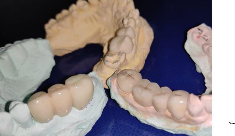 Classifications of Fixed Partial Dentures and Bridges