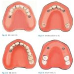 Implant Corrected Kennedy Classification