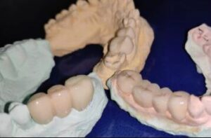 Indications and Contraindications of Fixed Partial Dentures
