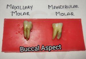 Differences between Maxillary and Mandibular Molars Buccal Aspect