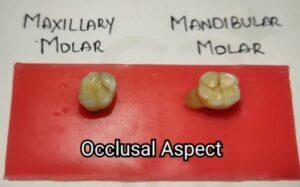 Differences between Maxillary and Mandibular Molars Occlusal
