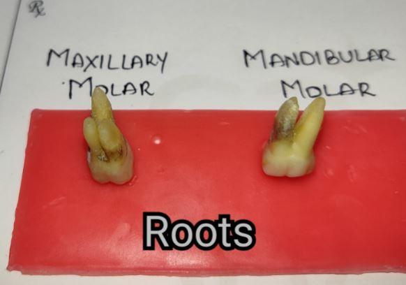 Differences between Maxillary and Mandibular Molars Roots