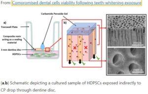 Harmful effects of home teeth whitening kits