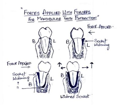 Forces Applied for Mandibular tooth Extraction with Forceps