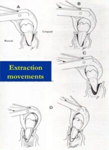 Mandibular Forceps movements for tooth extraction